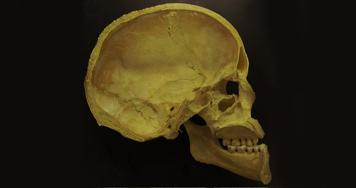 Section-of-Human-Skull