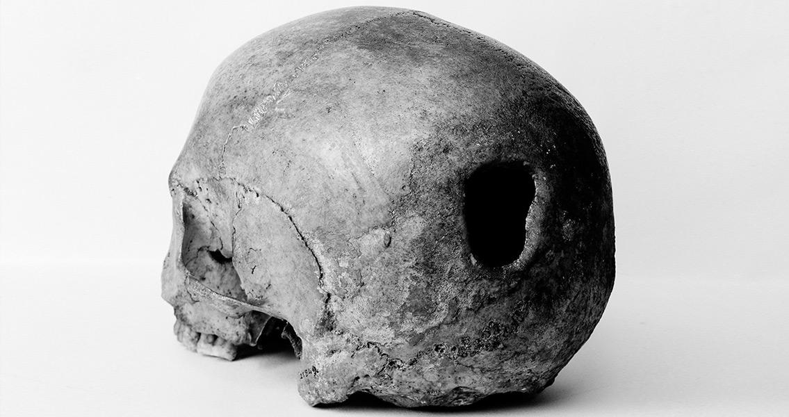 Ancient Peruvians Were Skilled Surgeons
