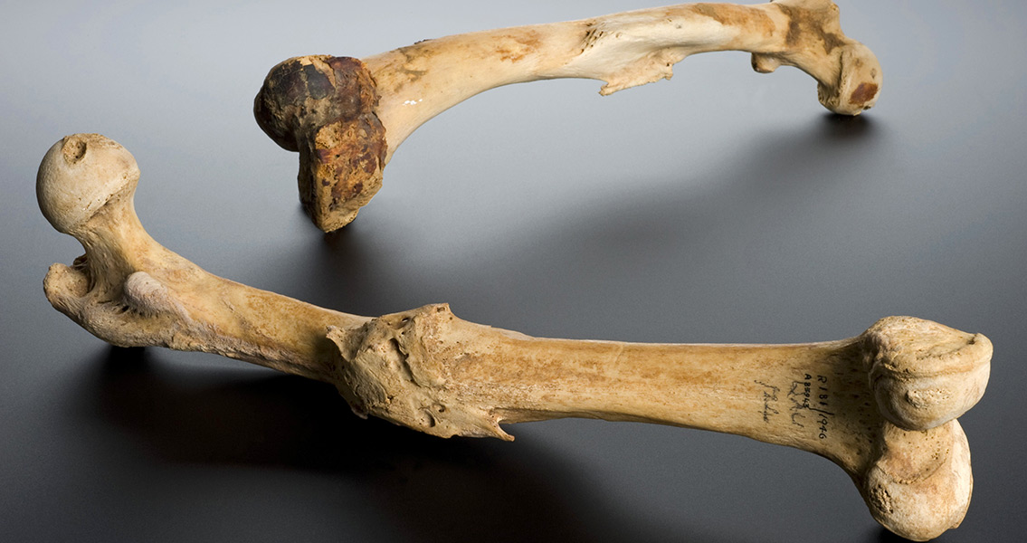 2000-Year-Old Hair Reveals Ancient Diet