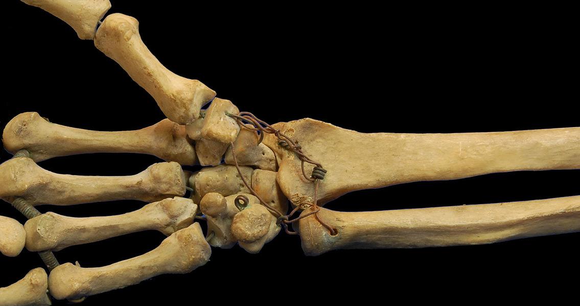 Finger Bone Find Pushes Back Origins Of Modern Human Hand