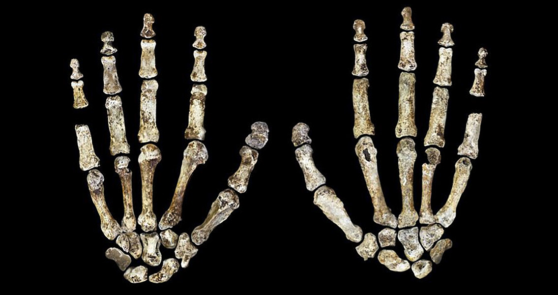 Early History of Rickets Revealed by Ancient Skeleton