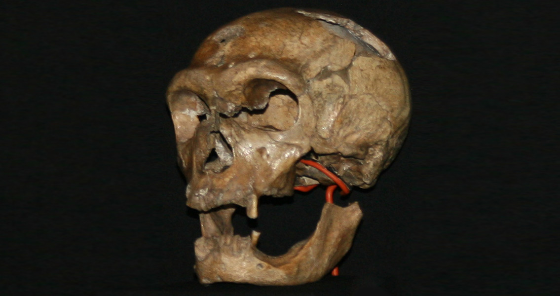 Congenital Anomalies Point to Neanderthal Inbreeding