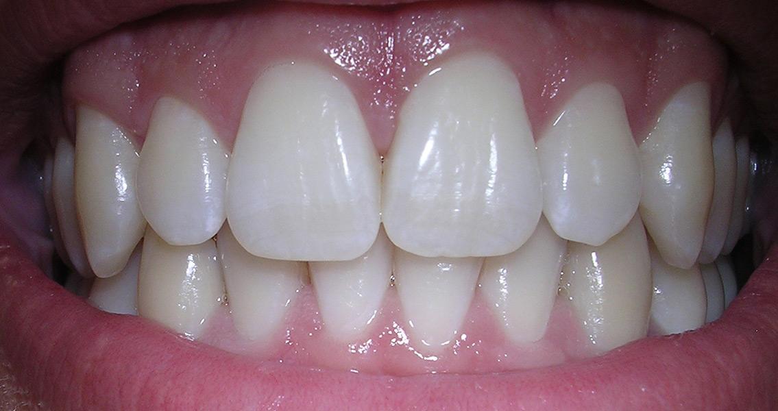 Teeth Reveal Ancient Human Habitation