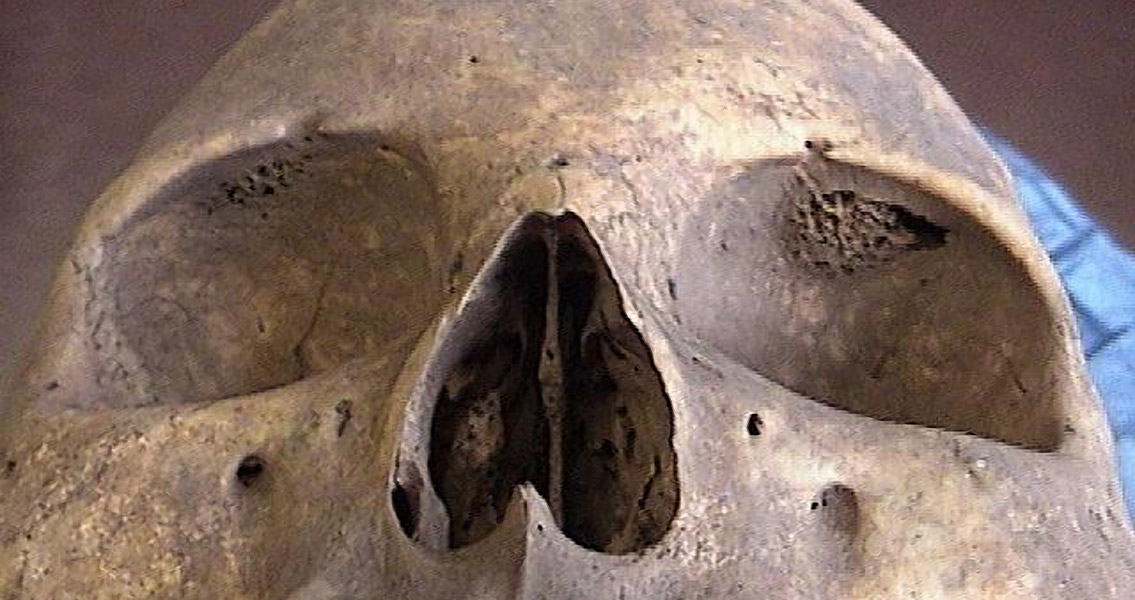 Skull Condition Thought Lost To Time Re Emerges