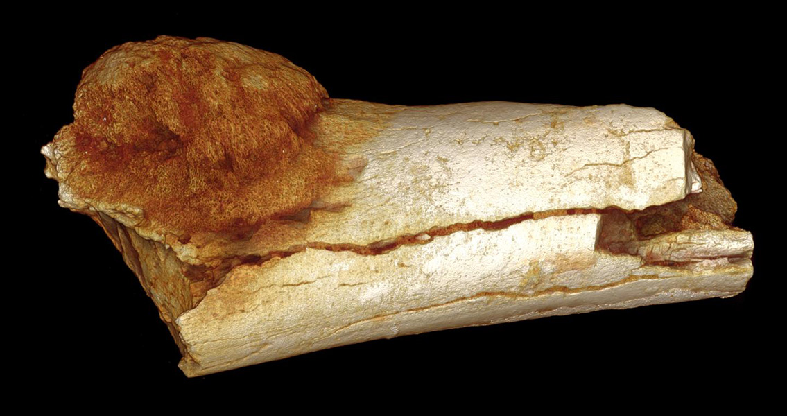 Earliest Human Cancer Pushes its Origins Back Over a Million Years