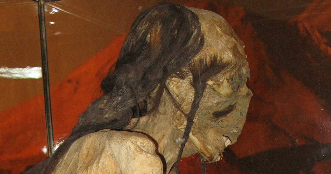 Hair Analysis of Chile Mummy Reveals Low-Stress Life