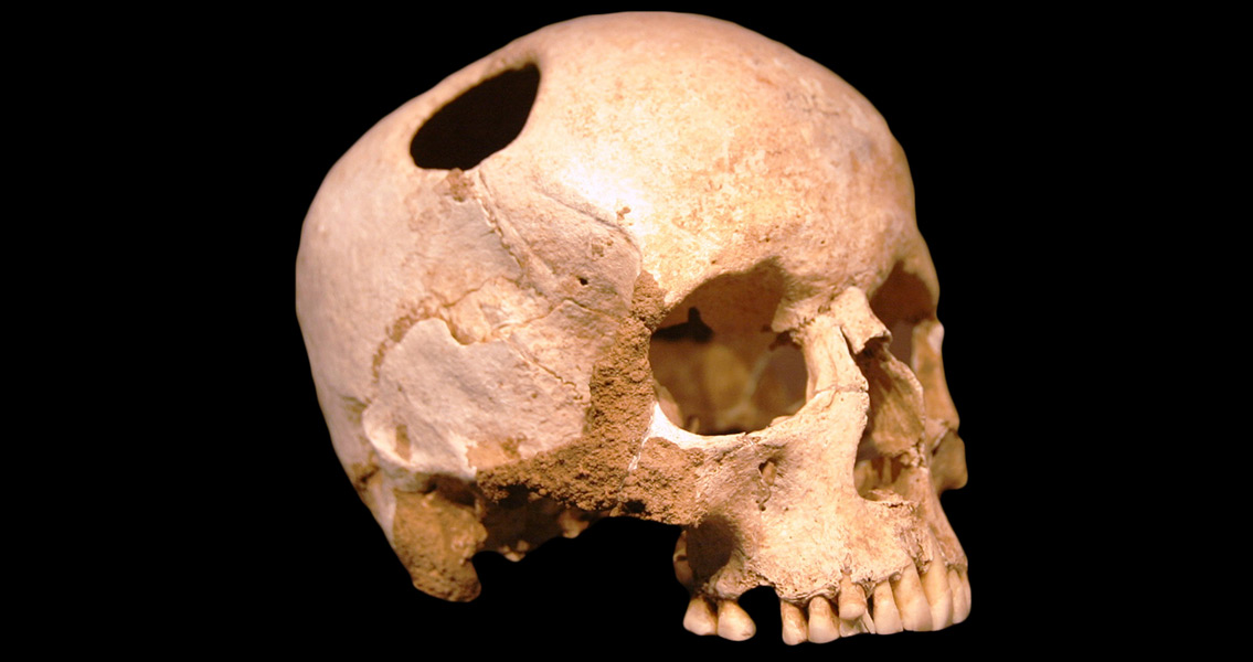 Team Recreates Bronze Age Trepanation Step-by-Step