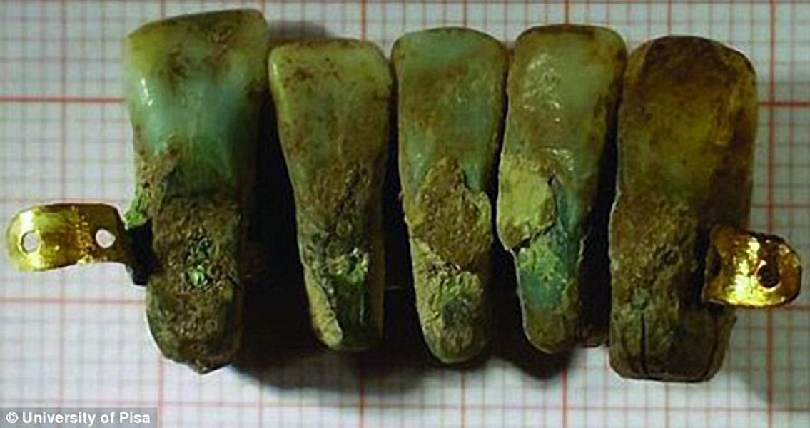 Early Set of Dentures Constructed With Human Teeth
